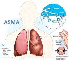 Obat Penyakit Asma Tradisional